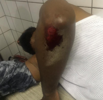 FFK feud as Deji Adeyanju got hospitalised after being beaten up by miscreants.
